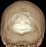 3d hersenen Stock Foto's
