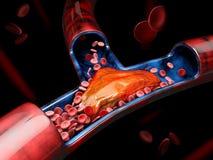 3d Illustratie van Diepe Adertrombose of Bloedstolsels embolie vector illustratie