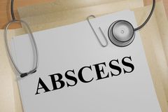 ABSCESS - medical concept. 3D illustration of ABSCESS title on a medical document Stock Photo