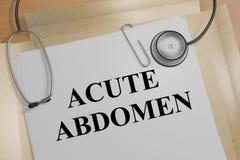 ACUTE ABDOMEN concept. 3D illustration of ACUTE ABDOMEN title on a medical document vector illustration