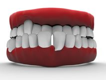 3D illustration - bad teeth. 3D render illustration of an isolated bad teeth closeup. The composition is isolated on a white background with shadows Stock Photography