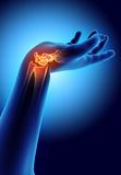 3D illustration of Carpal, medical concept. Royalty Free Stock Photography