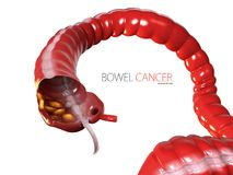 3d Illustration of Colorectal cancer, isolated white background.  royalty free illustration