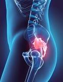 3D illustration d'épine sacrée, concept médical Images stock