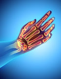 3D illustration of Hand Skeleton, medical concept. 3D illustration of Hand Skeleton - Part of Human Skeleton Stock Photography