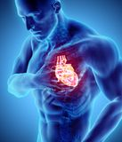 3d illustration of human heart attack. 3d illustration of human heart attack, x-ray medical concept Stock Photography
