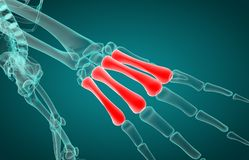 3D illustration of of metacarpal x-ray royalty free stock photography