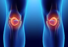 3D illustration of Patella, medical concept. Royalty Free Stock Images