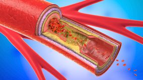 Illustration of a precipitated and narrowing blood vessel. 3d illustration of a precipitated and narrowing blood vessels or arteriosclerosis Stock Photo