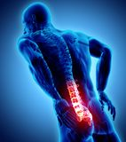 3D Illustration of sacral spine painful. 3D Illustration of sacral spine painful, medical concept Royalty Free Stock Images