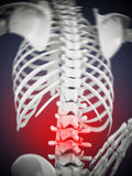 3D illustration showing back pain. 3D illustration Royalty Free Stock Photography