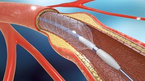Stent implantation for supporting blood circulation into blood vessels. 3d illustration of stent implantation for supporting blood circulation into blood vessels royalty free illustration