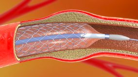 Stent implantation for supporting blood circulation into blood vessels. 3d illustration of stent implantation for supporting blood circulation into blood vessels vector illustration