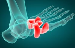 3D illustration of tarsal bone, x-ray royalty free stock photo