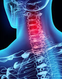 3D illustration x-ray neck painful. Stock Images