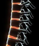 3D ilustracja Zredukowany system - Radiologiczny ludzki kręgosłup ilustracja wektor