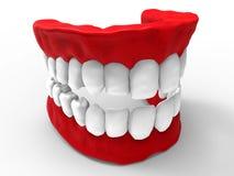 3D ilustracyjni zęby i dziąsło ilustracji