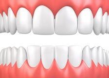 3D ilustracyjni zęby i dziąsło model royalty ilustracja