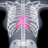 3D image female chest xray Stock Photos