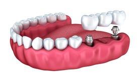 3d lagere tanden en geïsoleerde tandimplant Stock Afbeelding