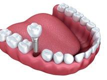 3d lagere tanden en geïsoleerde tandimplant Stock Foto's