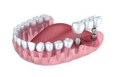 3d lagere tanden en transparante tandimplant geven terug Stock Fotografie