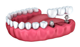3d lower teeth and dental implant isolated Stock Image