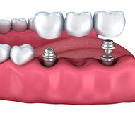 3d lower teeth and dental implant isolated Stock Photos