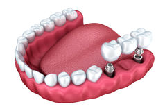 3d lower teeth and dental implant Royalty Free Stock Images