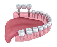 3d lower teeth and dental implant transparent render Stock Images