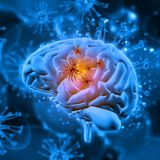 3D medical background with virus cells attacking the brain. 3D render of a medical background with virus cells attacking the brain Stock Image