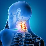 3D medical female with neck bones highlighted. 3D render of a medical female with neck bones highlighted Stock Image