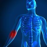3d odpłacają się medyczny wizerunek z bolesnym łokciem podkreślają ilustracja wektor