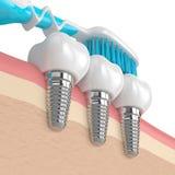 3d odpłacają się stomatologiczni wszczepy z toothbrush Zdjęcia Royalty Free