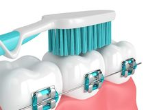 3d odpłacają się zęby z brasami i toothbrush Zdjęcie Stock