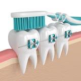 3d odpłacają się zęby z brasami i toothbrush Obraz Stock
