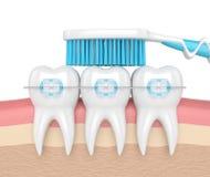 3d odpłacają się zęby z brasami i toothbrush Zdjęcia Royalty Free