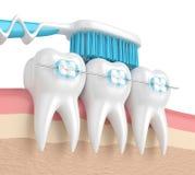3d odpłacają się zęby z brasami i toothbrush Zdjęcia Stock