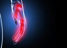 3d rendem a dor humana da mão e do pulso Fotografia de Stock Royalty Free