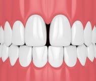 3d rendem dos dentes com diastema ilustração royalty free