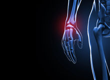3d render Human hand and wrist pain Royalty Free Stock Images
