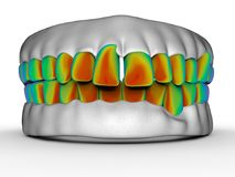 Bad teeth analysis concept. 3D render illustration of analyzing bad teeth. The composition is isolated on a white background with shadows Stock Photo