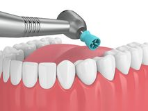 3d render of jaw with dental handpiece and polishing prophy cup stock illustration