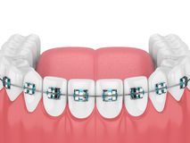 3d render of jaw with teeth and orthodontic braces Royalty Free Stock Photos