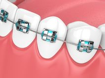 3d render of jaw with teeth and orthodontic braces Stock Image