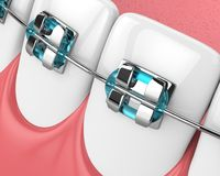 3d render of jaw with teeth and orthodontic braces Stock Photo