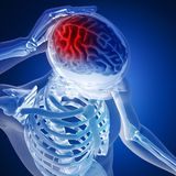 3D render of a medical figure with brain highlighted Royalty Free Stock Photos