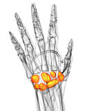 3d render medical illustration of the carpal bone Stock Photography