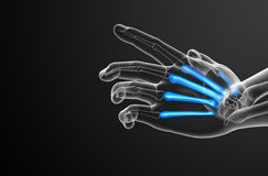 3d render medical illustration of the metacarpal bone Royalty Free Stock Images