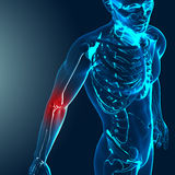 3d render of a medical image with painful elbow highlighted Royalty Free Stock Photo